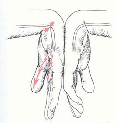 la sindrome del  tunnel carpale5